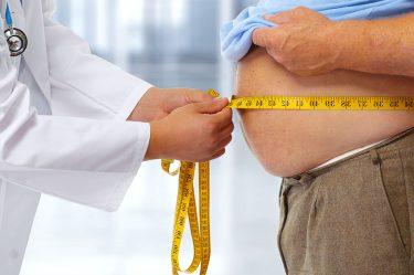 Protesi d'anca e obesità: rischi e soluzioni